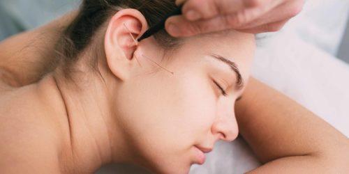 Ohrakkupunktur bei einer Frau
