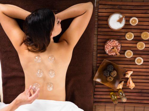 Eine Frau bekommt eine Schröpf-Behandlung auf Ihrem Rücken