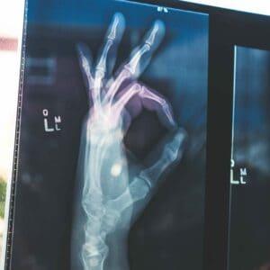 Röntgenbild auf der eine Hand zu sehen ist die OK symbolisiert